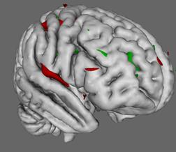 3D Brain MRI